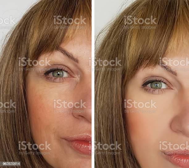 Foto de Rosto De Uma Mulher Idosa Rugas Antes E Depois e mais fotos de stock de Adulto