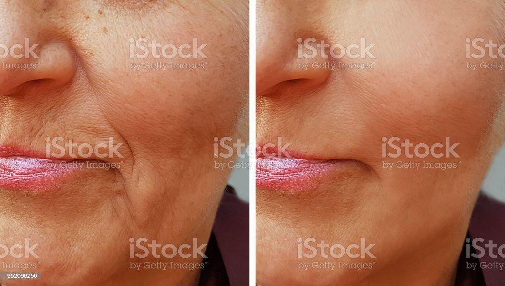 cara de una vieja mujer arruga antes y después - foto de stock