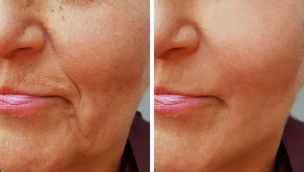 古いしわ女性の前に、と後の顔 ストックフォト