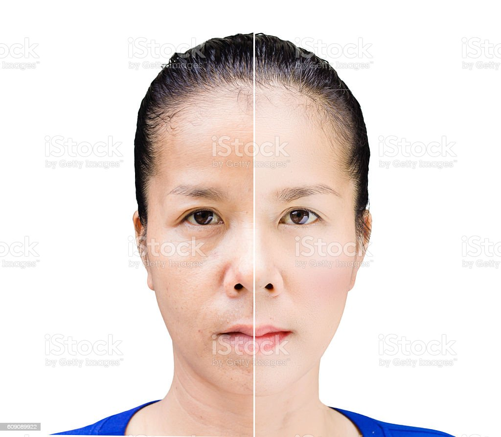 Face of beautiful asian woman before and after retouch – Foto