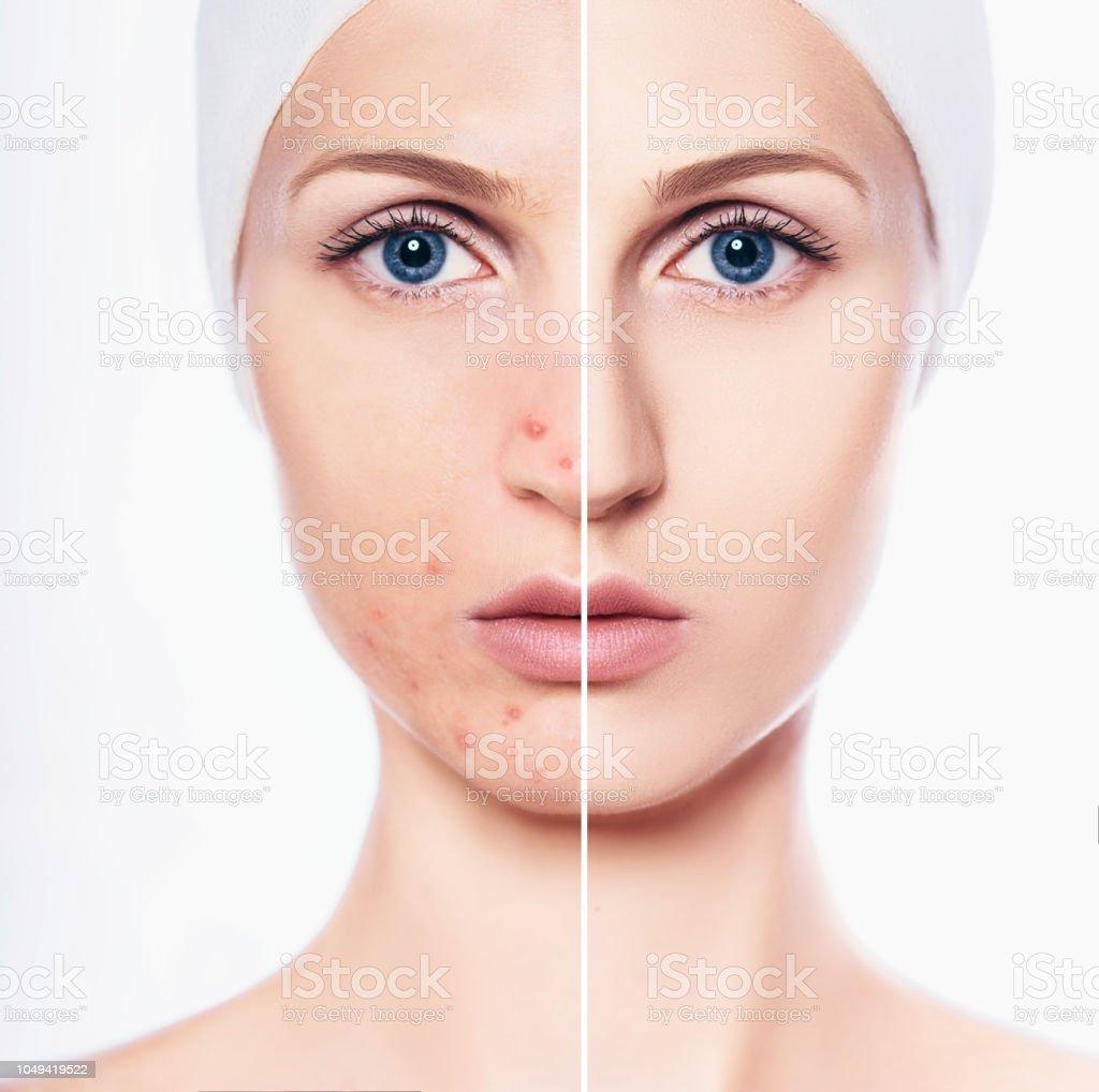 Gesicht Der Schönen Frau Mit Problemhaut Akne Und Reine Haut