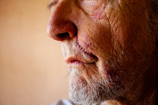 Portrait of a caucasian male in his mid-60s showing a scar with stitches from his nose to his mouth, a black eye and other bruising.