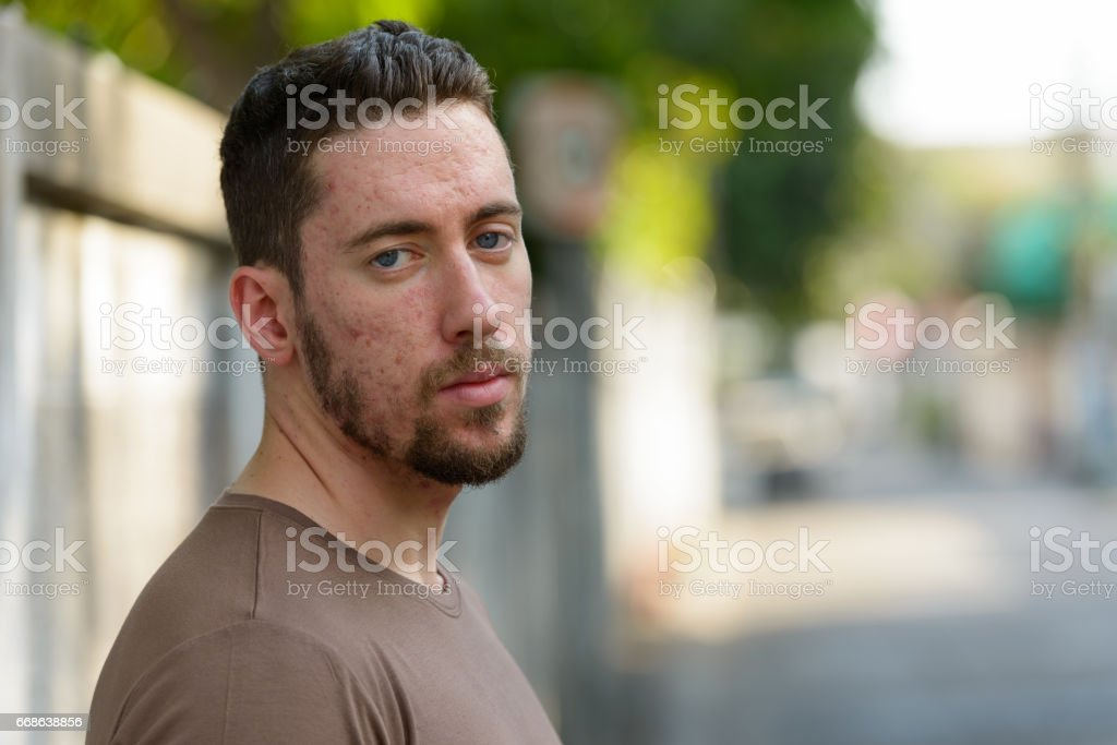 Face of young handsome man with acne skin outdoors stock photo