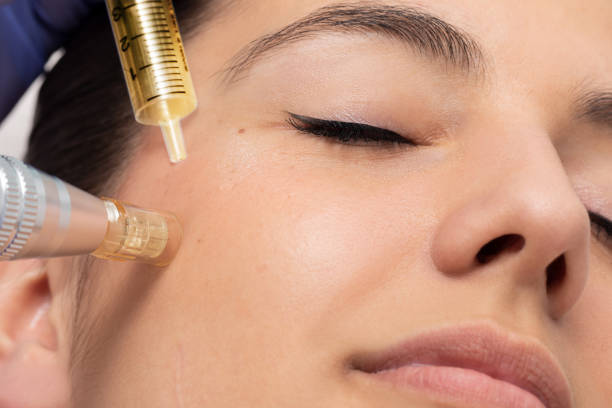 Face shot of woman at micro needle cosmetic treatment session. stock photo
