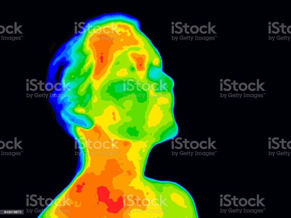 Face Thermograpy Carotid stock photo