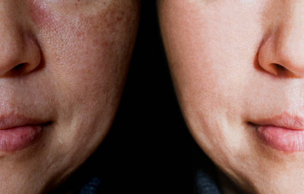Face with open pores and melasma before and after make up or treatment concept. stock photo