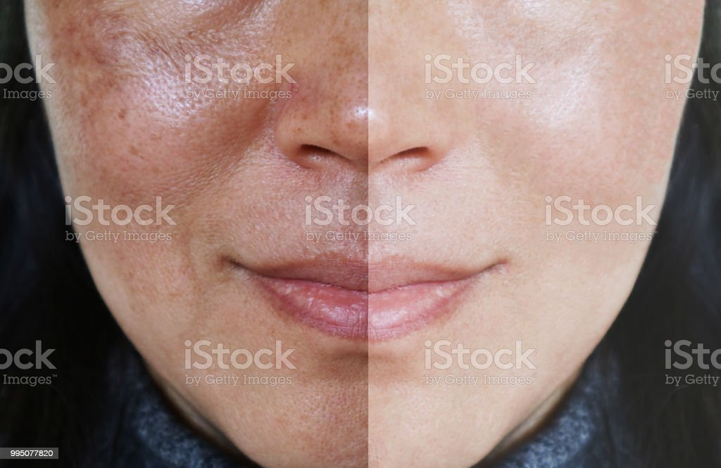 Face with open pores and melasma before and after make up or treatment concept. Face with open pores and melasma before and after make up or treatment concept. Adult Stock Photo