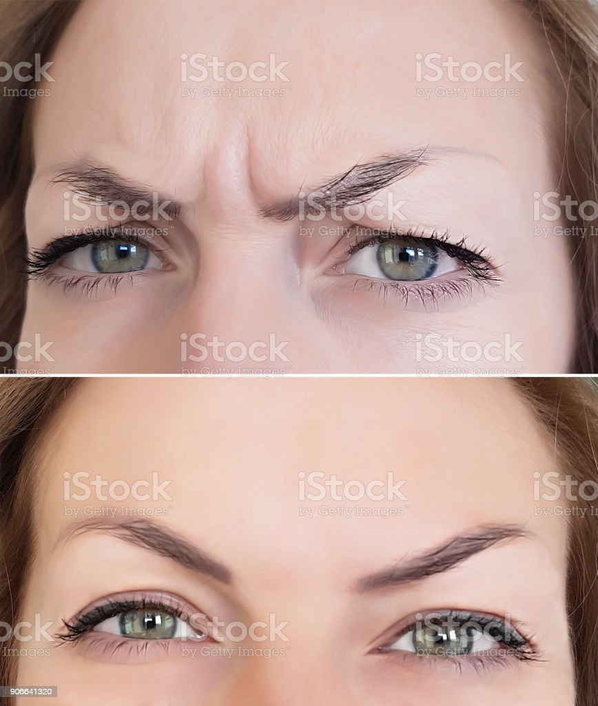 face woman wrinkles before and after eyes - foto stock