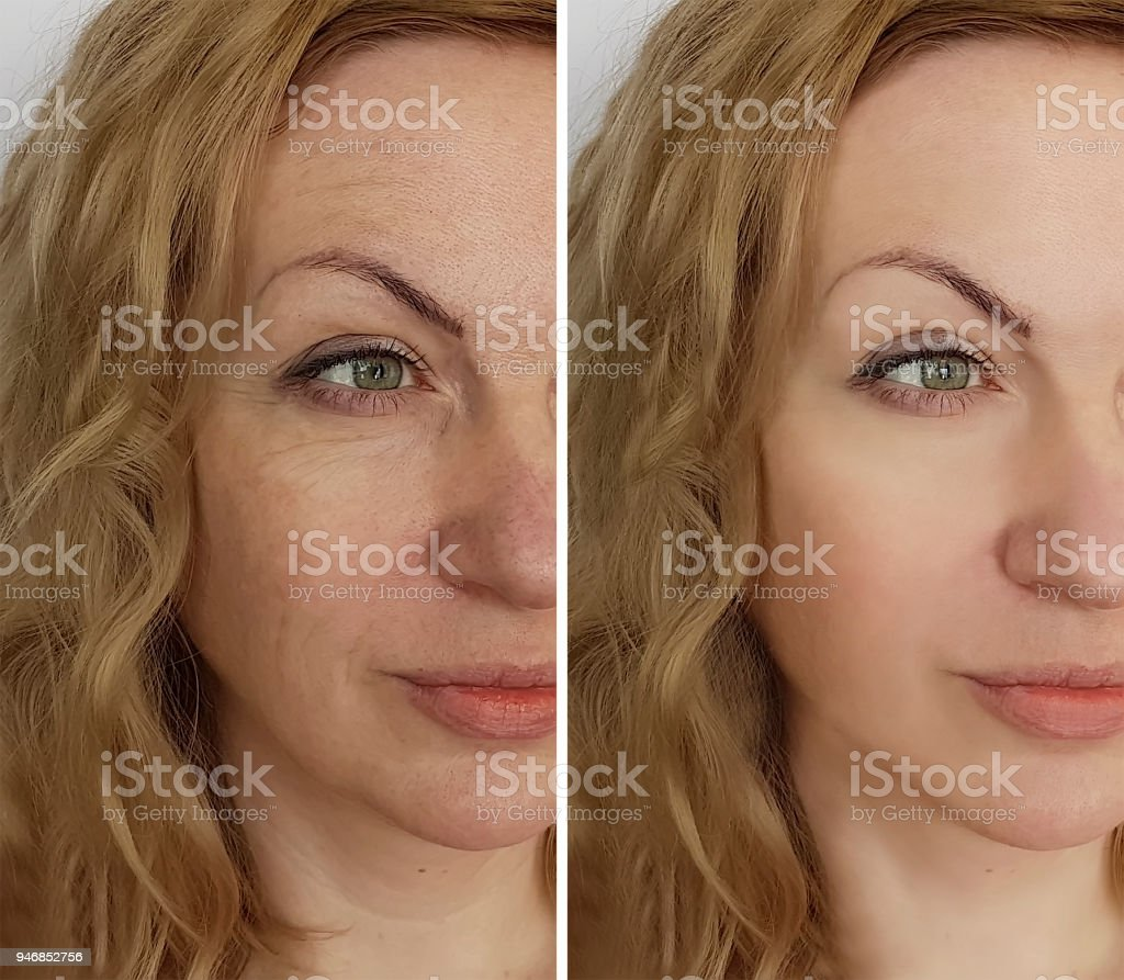 face woman wrinkles before and after stock photo