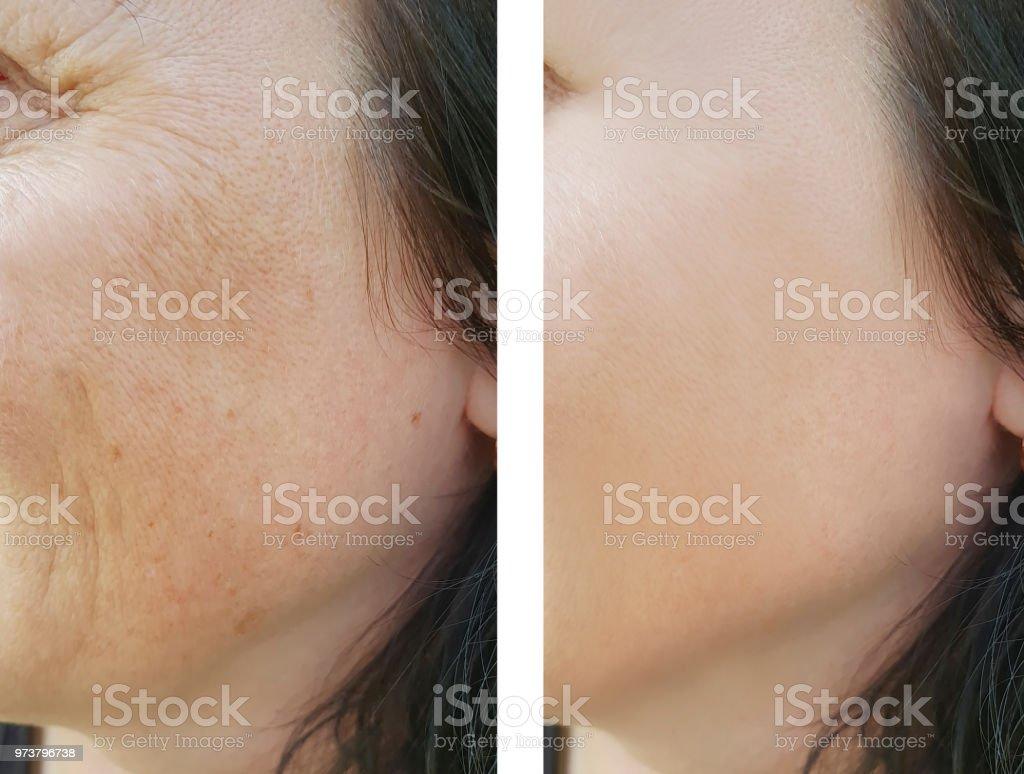 3cfd9c9cdae7 Falten Im Gesicht Frau Vor Und Nach Stockfoto und mehr Bilder von ...