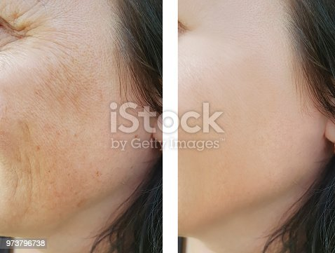 istock face woman wrinkles before and after 973796738