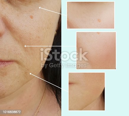 istock face woman wrinkles before and after procedures 1016838872