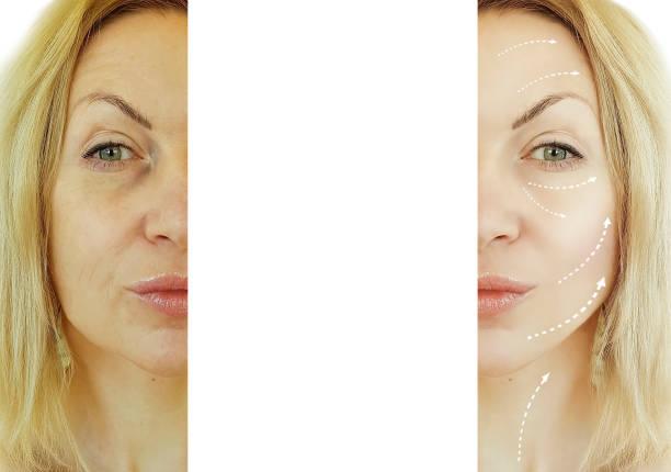 ansikte kvinna rynkor korrigering före och efter förfaranden, pil - filler swollen bildbanksfoton och bilder