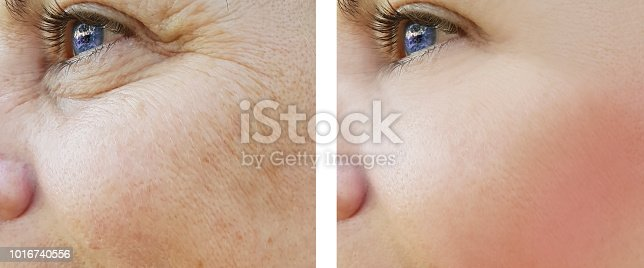 istock face woman wrinkles eyes before and after procedures, pigmentation 1016740556