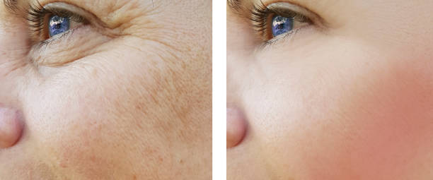 face woman wrinkles eyes before and after procedures, pigmentation face woman wrinkles eyes before and after procedures, pigmentation antiaging stock pictures, royalty-free photos & images