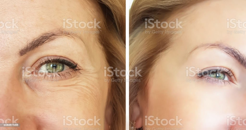 face wrinkles before and after stock photo