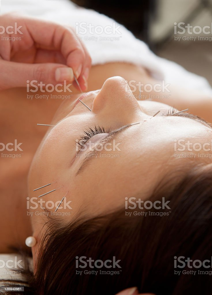 Facial Acupuncture Beauty Treatment royalty-free stock photo