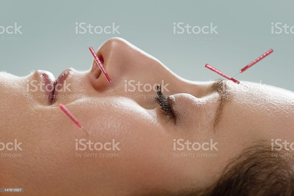 Facial acupuncture royalty-free stock photo
