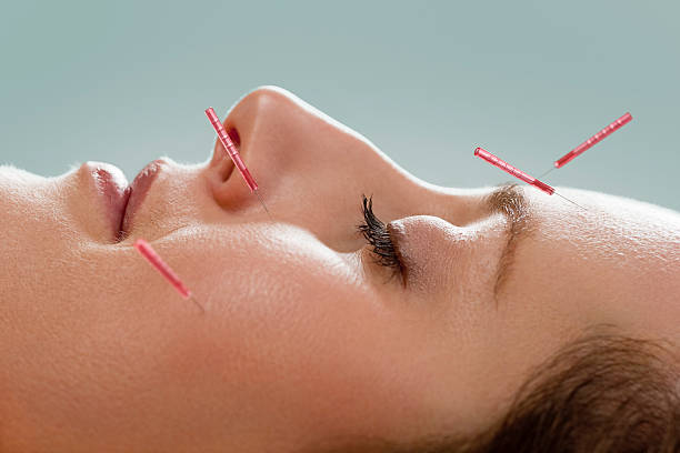 Facial acupuncture stock photo