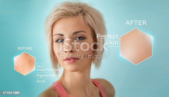 istock Facial close-up showing the effectiveness of skin treatment 474041980