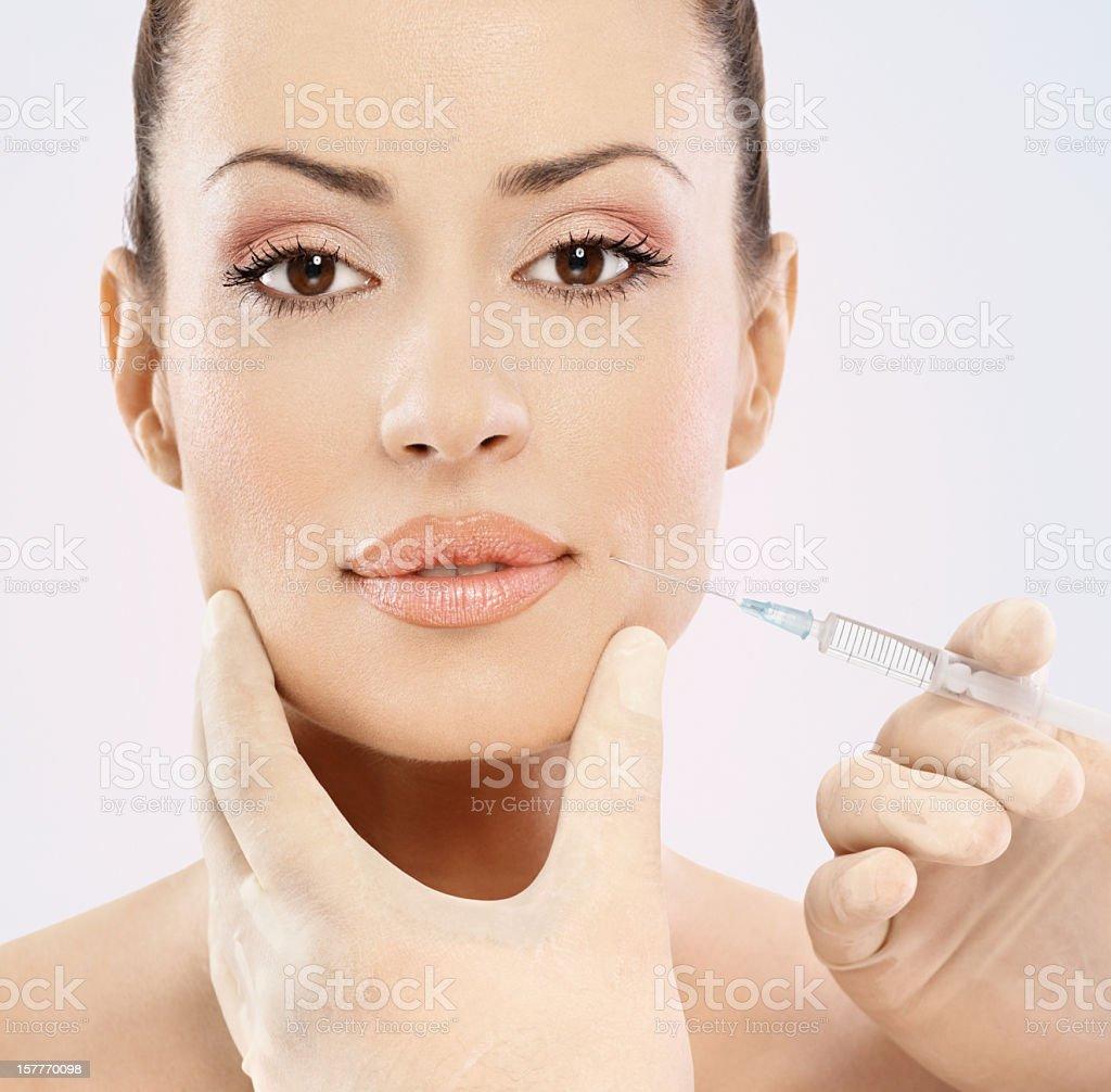 Facial filler treatment. royalty-free stock photo