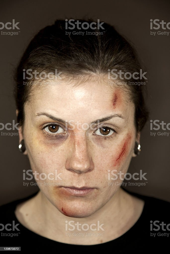 Facial Injuries stock photo