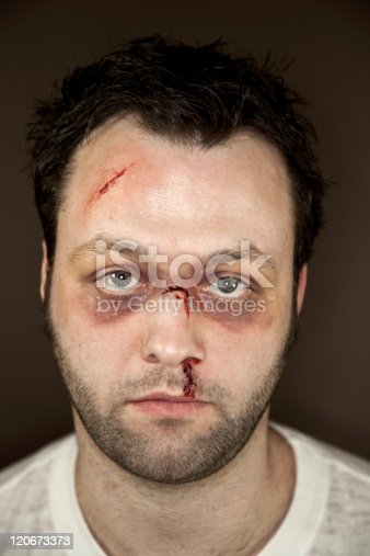 Injuries to the face caused by physical abuse simulated with stage make-up.  Image may be used to represent domestic violence or other physical assault. Shot indoors with ringflash and studio lights with narrow depth of field