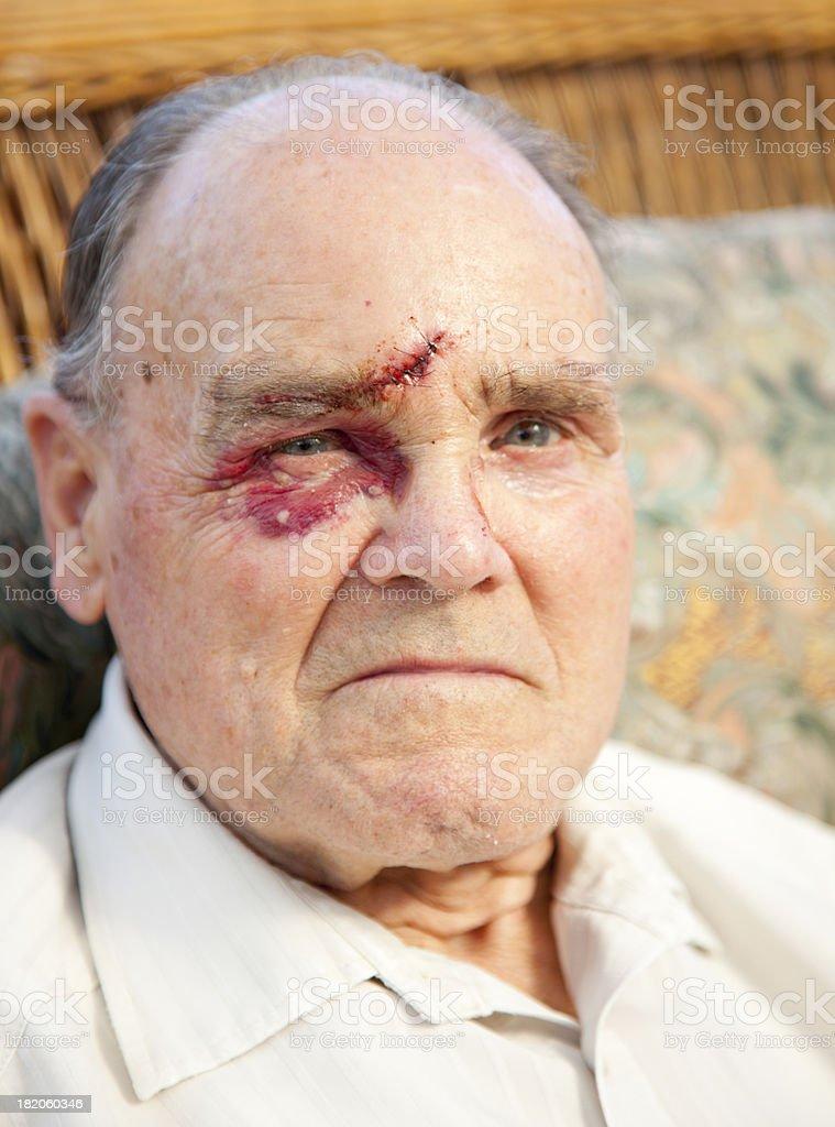 facial injury after assault stock photo