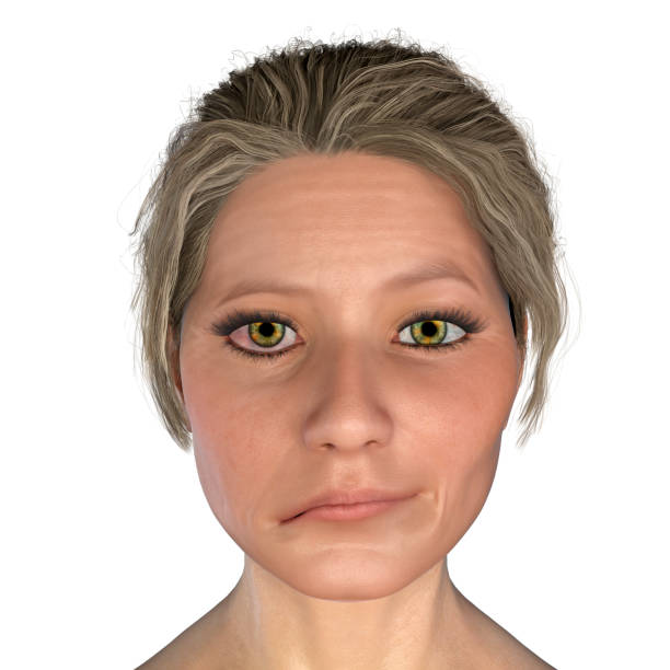 Facial nerve paralysis, Bell's palsy stock photo