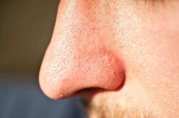 Facial Skin Closeup; Squeezed out Whiteheads Close-up of human facial pores and squeezed out whiteheads human nose stock pictures, royalty-free photos & images