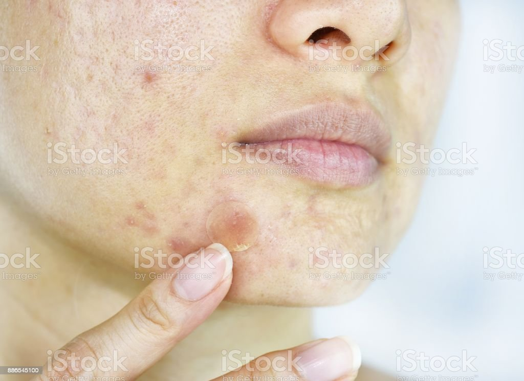 Facial skin problem, Close up woman face with whitehead pimples and acne patch, Scar and oily greasy face, Beauty concept. stock photo