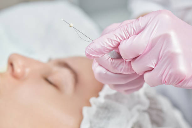 Facial skin reinforcement in office of professional cosmetologist, facelift with mesothreads, anti-aging close-up rejuvenation
