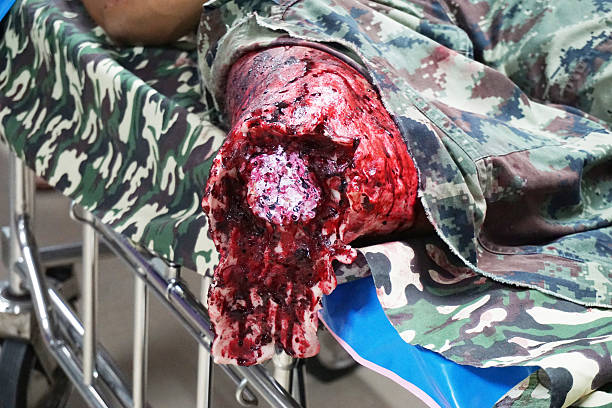 fake explosion wound of soldier's leg - head injury stock photos and pictures