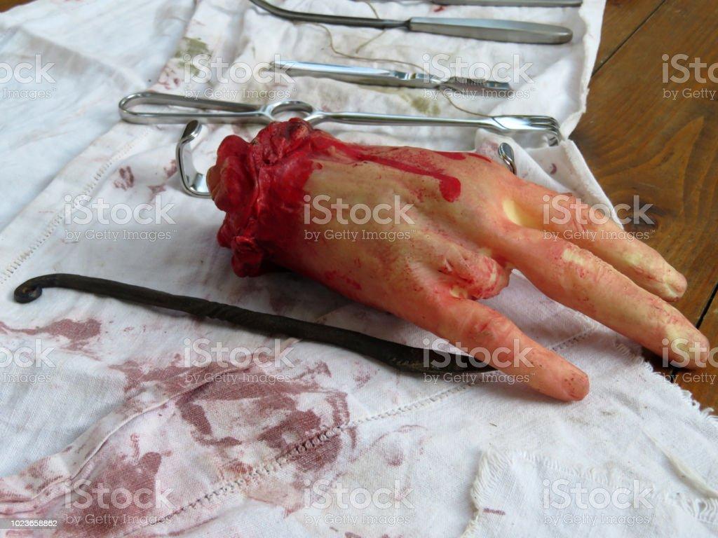 Gefälschte abgetrennte menschliche Hand ohne Finger und realen chirurgischen Instrumente auf das blutige Tuch – Foto