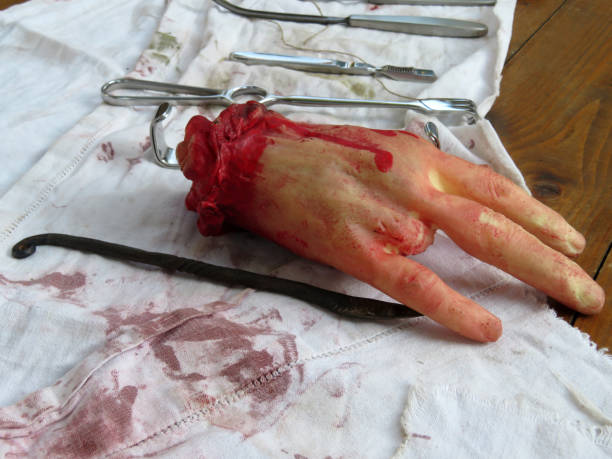 Fake severed human hand without finger and real surgical instruments on the bloody cloth stock photo