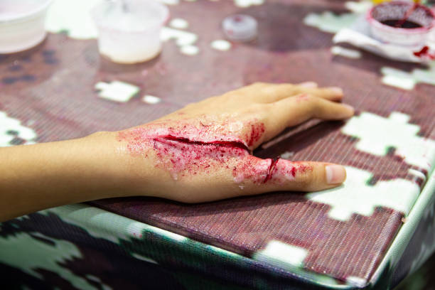 fake wounds makeup on the arm for boy asia, dress the wound special effect - open wounds stock photos and pictures
