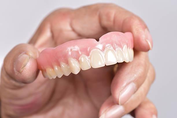 false de dents - Photo