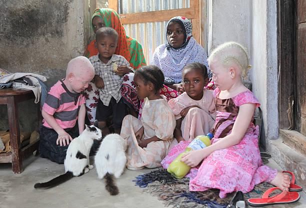 Family with two albino children picture id458673975?b=1&k=6&m=458673975&s=612x612&w=0&h=k o9lsnwazou2asjwzkj4kj6zfjlnzlnk3jipumwb5y=