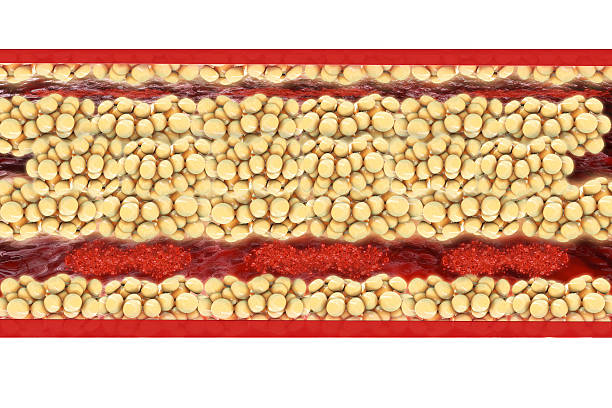 Fat cells - 3d rendered illustration Fat cells - 3d rendered illustration adipose tissue stock pictures, royalty-free photos & images