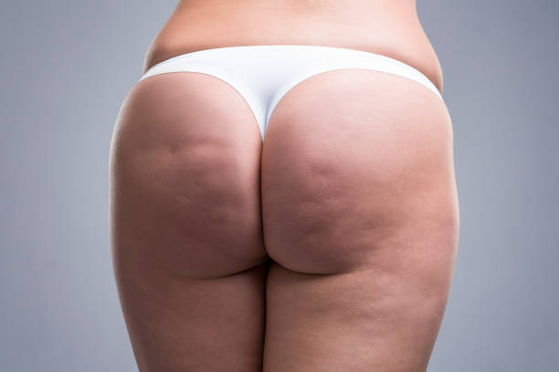Fat female body with cellulite, fatty hips and buttocks, gray background stock photo