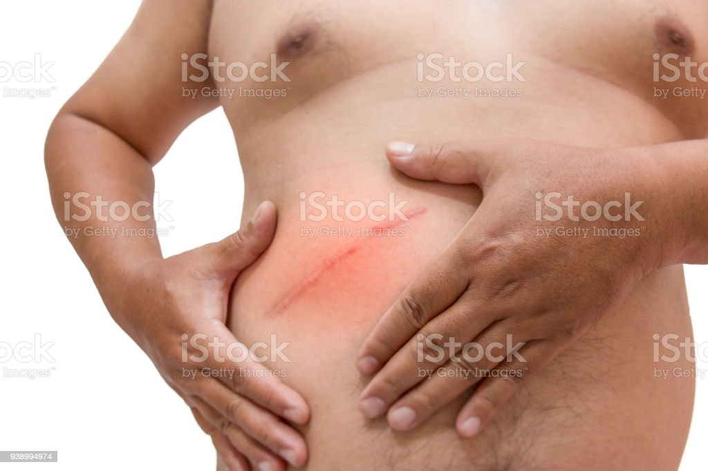 fat man with scar after surgery on abdomen, removal of appendicitis. stock photo
