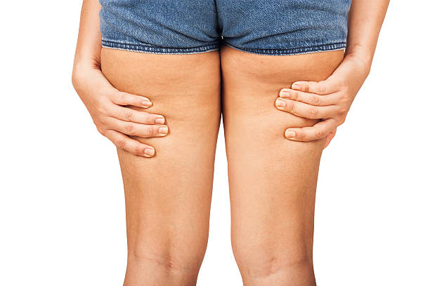 graisse sur les cuisses, la cellulite d'une adolescente. - cuisse photos et images de collection