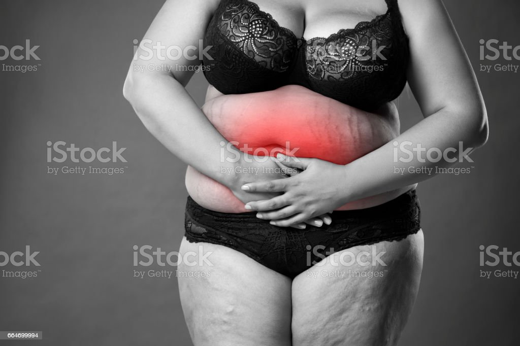Dicke Frau Mit Regelschmerzen Endometriose Oder Blasenentzündung ...