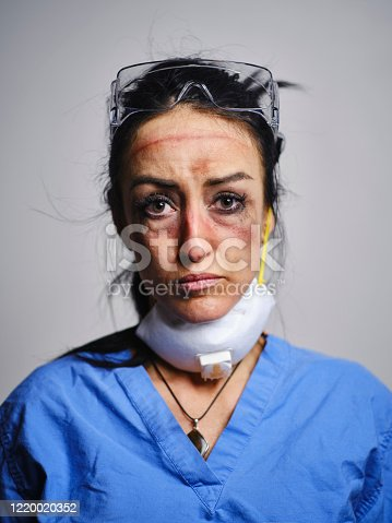 A healthcare worker showing the signs of fatigue from working long hours combatting communicable disease in a hospital.