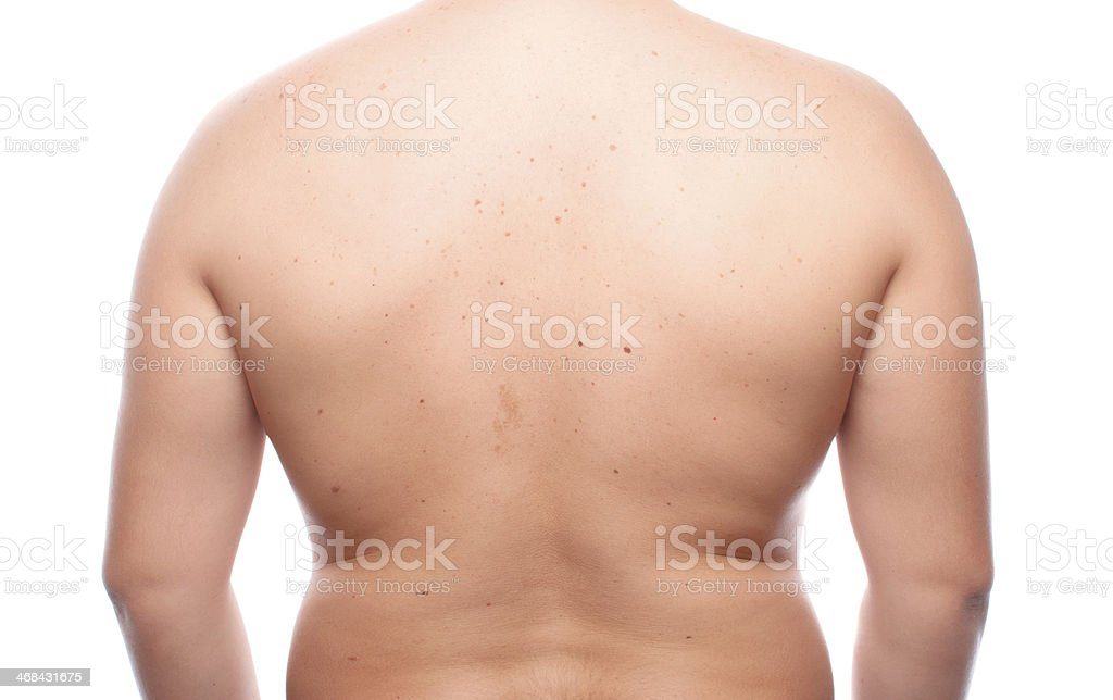 Fatness Human Body Back View Stock Photo More Pictures Of Adult