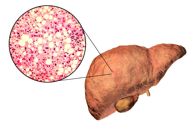 Fatty liver, liver steatosis stock photo
