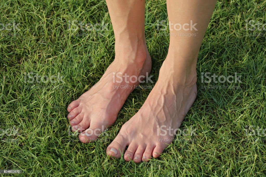 Feet and veins, swelling. Female bare feet on green grass stock photo