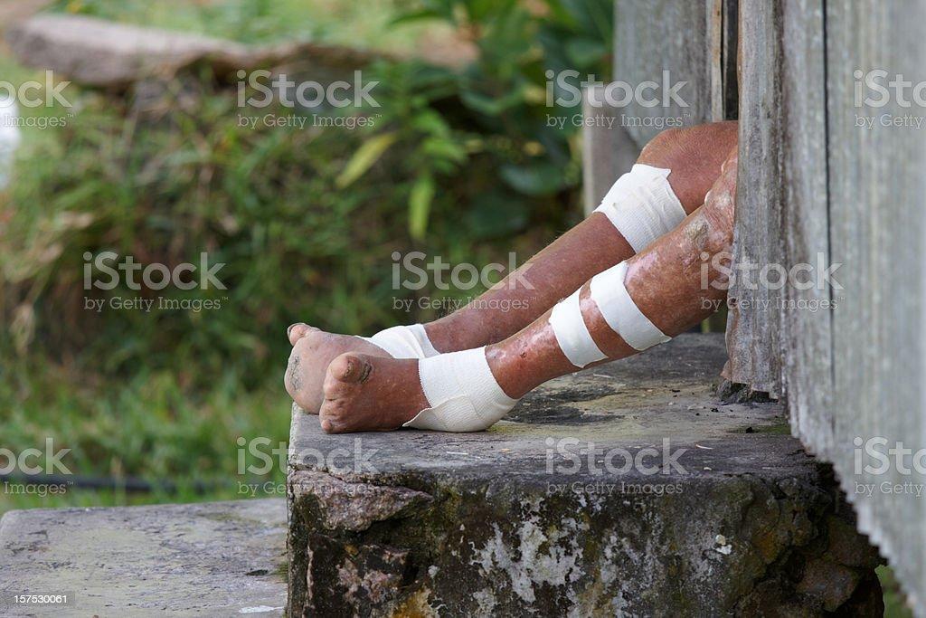 Feet of a Leper stock photo