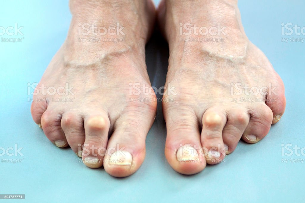 Feet Of Woman Deformed From Rheumatoid Arthritis stock photo
