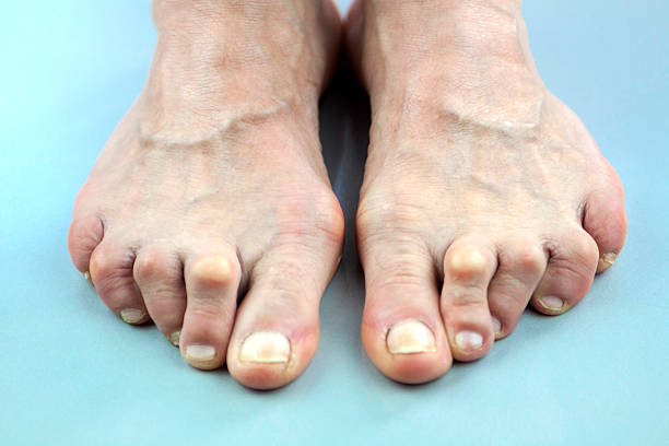 feet of woman deformed from rheumatoid arthritis - disfigure stock pictures, royalty-free photos & images